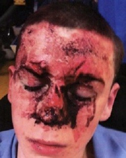 Assault victim
