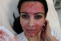 Kim Kardashian's Bloody facial