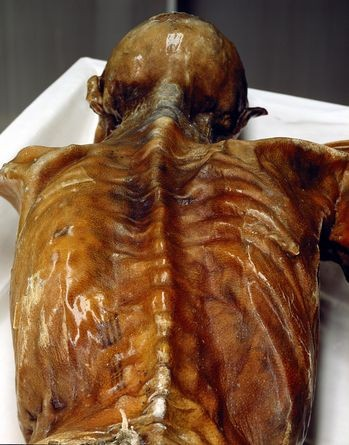 Iceman autopsy