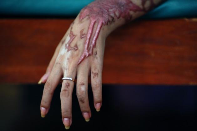 Acid Attack Victim