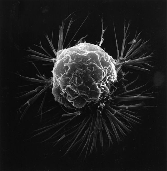 Breast cancer cell (Wiki Commons)