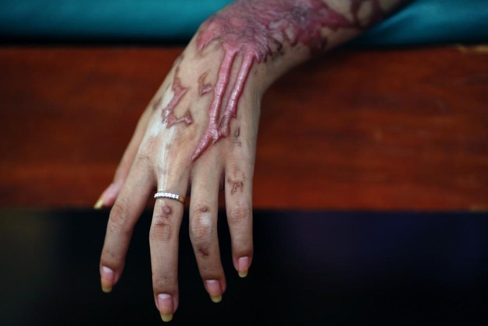 An Acid Attack Victim