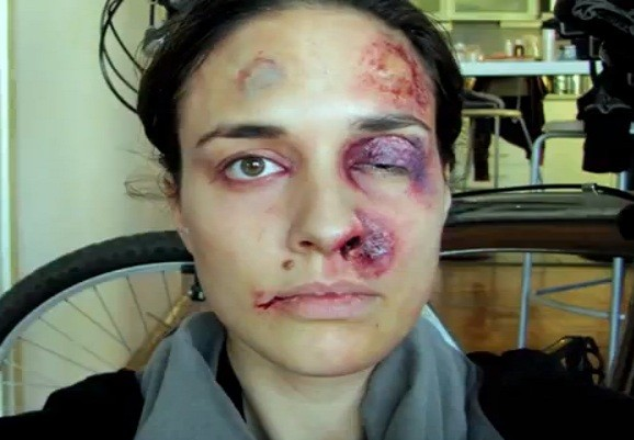 Chilling image: Battered features of woman