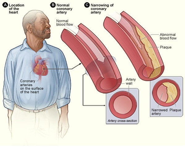 Difference Between Coronary Artery Disease and Atherosclerosis