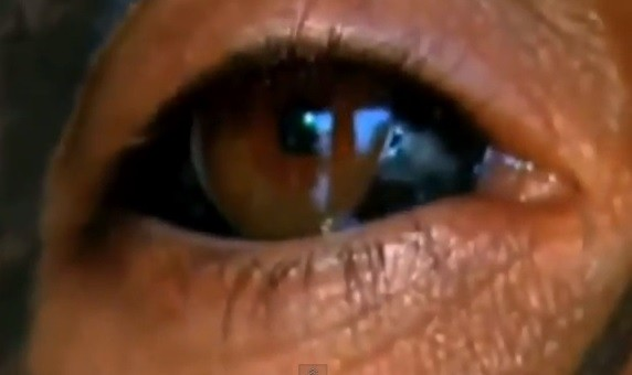 Cosmetic tattooing of the cornea can be extremely dangerous, with infection, loss of vision and blindness among the potential complications (YouTube)