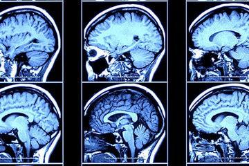 Brain scans