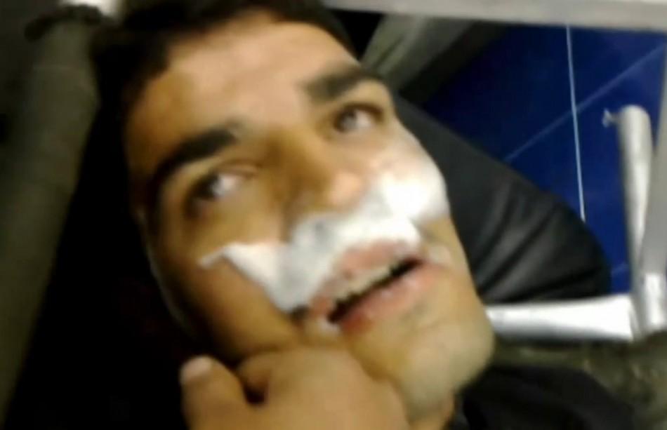 Sarin victim in Syria.