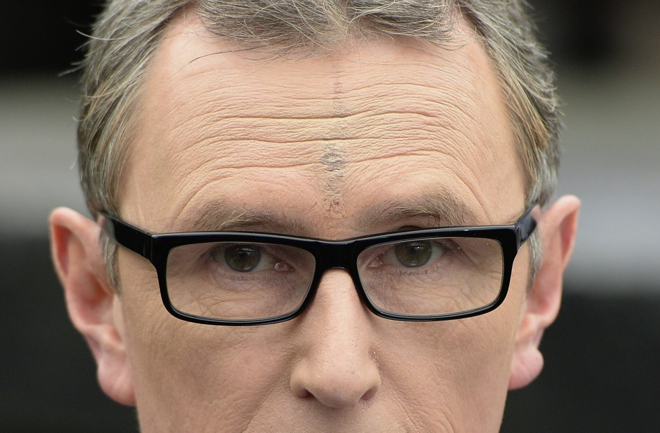 Nigel Evans with scar