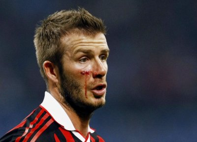 David Beckham bleeds from his cheek as he looks on during the Italian serie A soccer match against Chievo in Milan March 14, 2010.