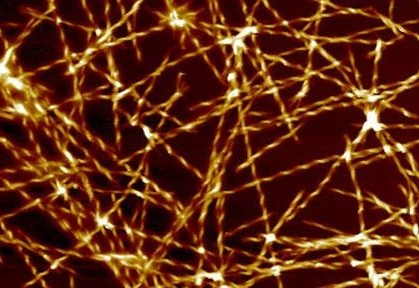 magnified a million times, of amyloid fibril, the type of protein structures that are formed in Alzheimer's