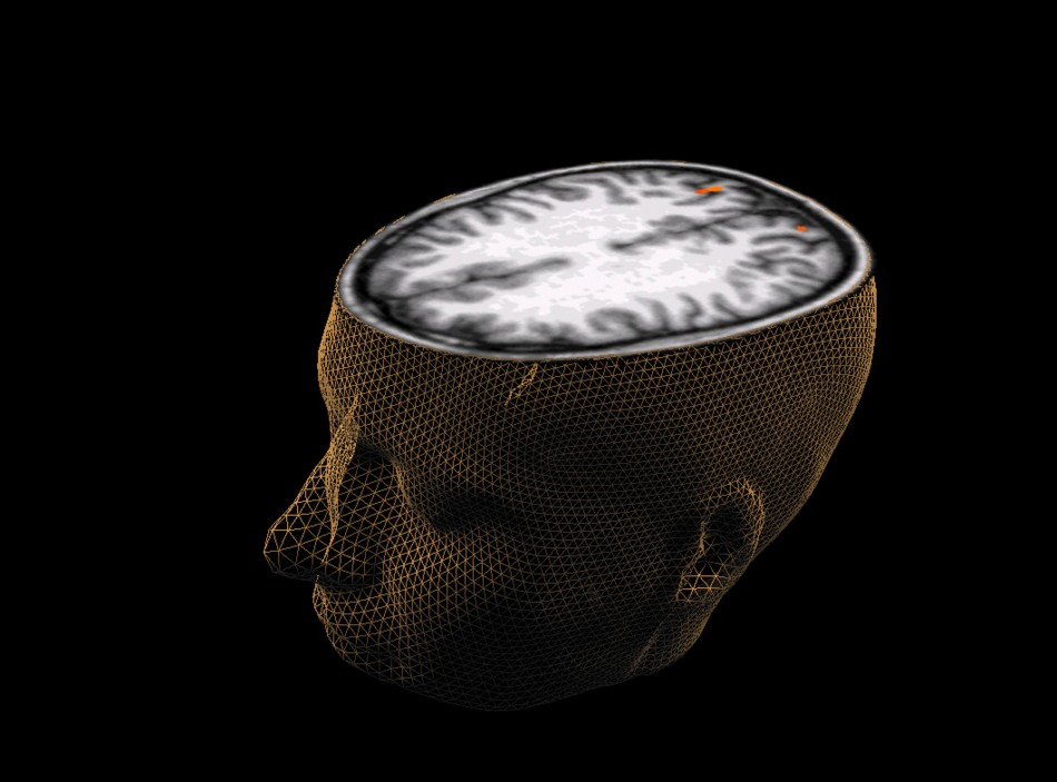 A scientist claims that brain scans can be used to predict which criminals will reoffend.