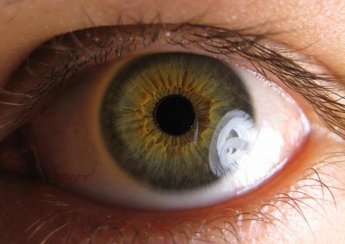 Ocular syphilis is a real STD, it causes blindness and it ...