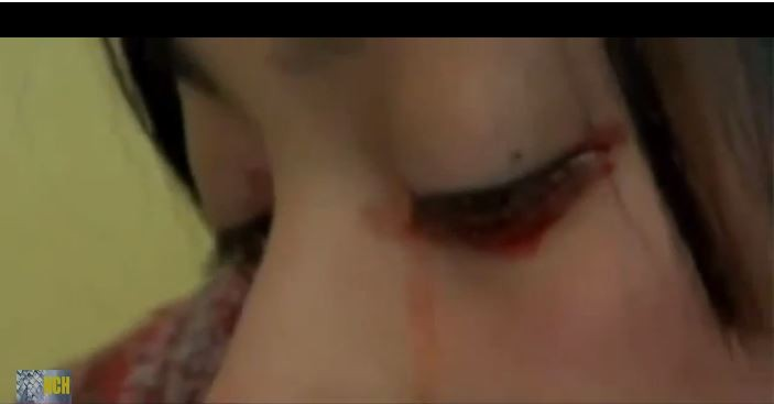 Yaritza Oliva crying tears of blood