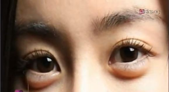 Aegyo Sal Korean Women Have Surgery To Make Eyes Puffy