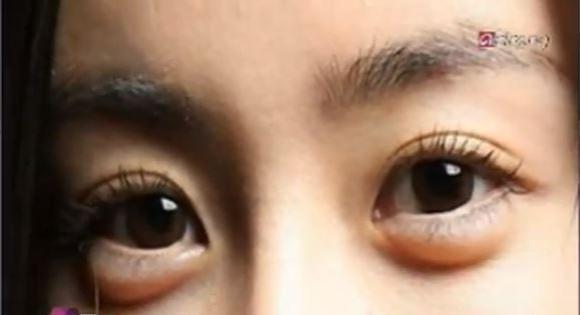 Aegyo Sal: Korean Women Have Surgery to Make Eyes Puffy and