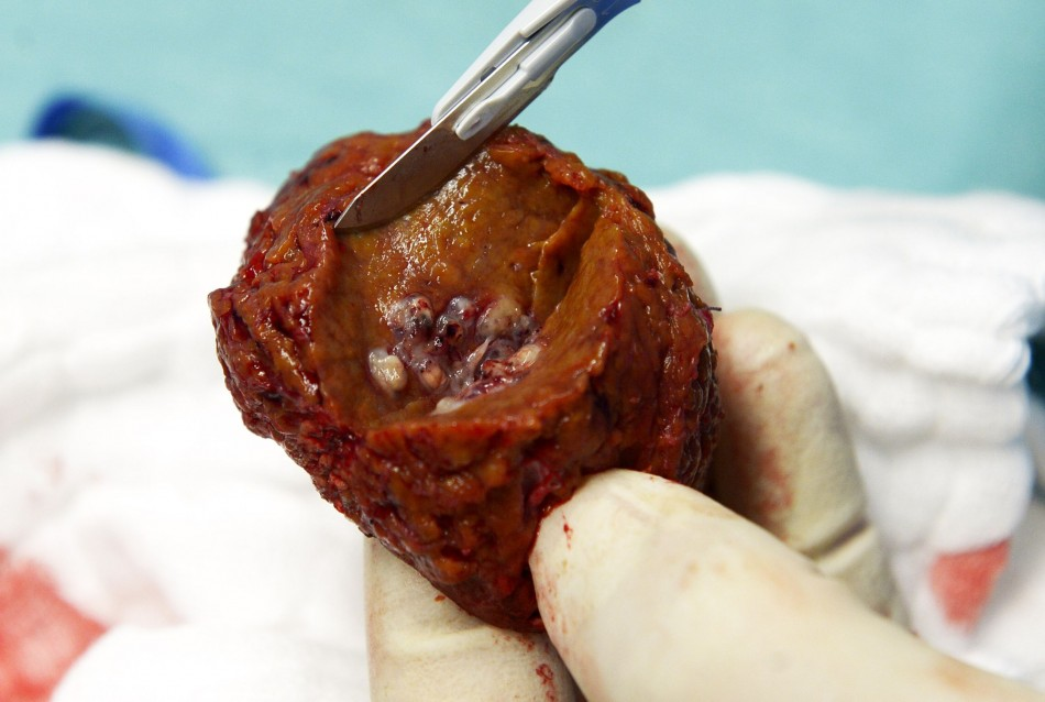 A tumor inside a piece of a liver which was removed during surgery, one of the first surgeries of its kind in Germany with the support of a tablet computer. (Photo: REUTERS/Fabian Bimmer)