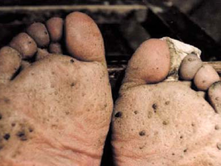 Advanced case of hyperkeratosis on the sole and toes resembles fish scales (© China Medical University, Shenyang)