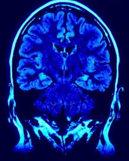 Scientists Wired Brain-to-Brain Undergo Mind Control Experiment
