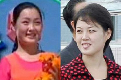 Hyon Song-Wol Execution: Was Kim Jong-un Ex-Lover's Death Driven by Jealousy