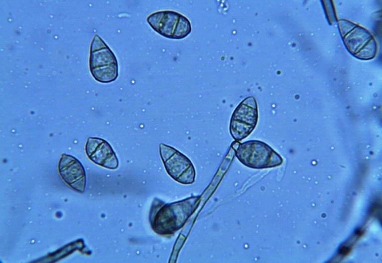 Rice blast spores