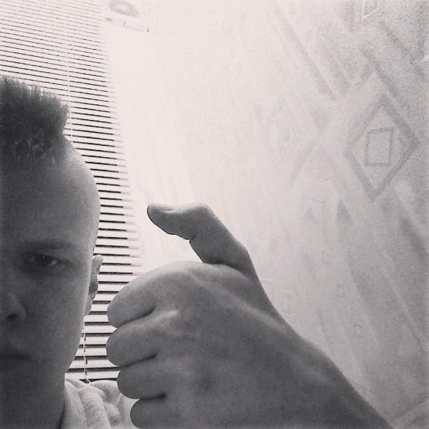 Bent thumb