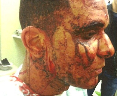 One of the men smashed a glass bottle into Hounye's face (Met Police)