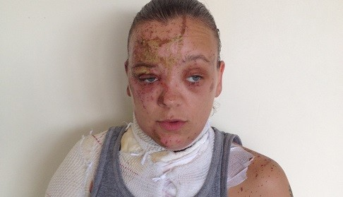 Tara Quigley said the attack has left her feeling as her life had been had been 'blown apart' (Met Police)