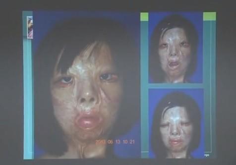 Xu Jianmei Chinese Surgeons Grow Transplant Face On