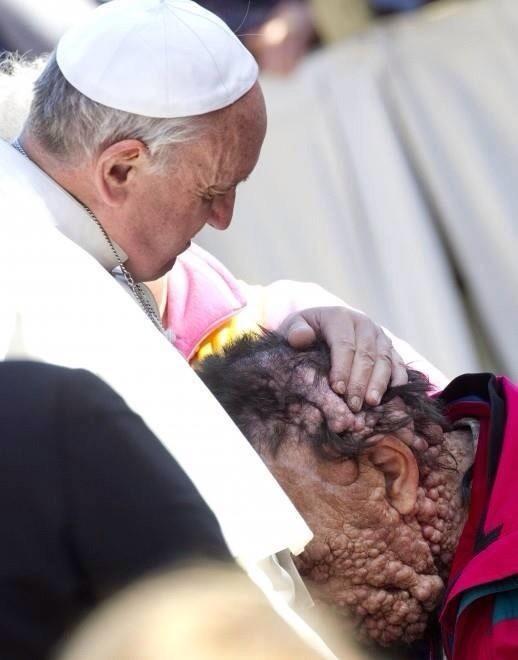 Pope Francis Kisses Disfigured Man
