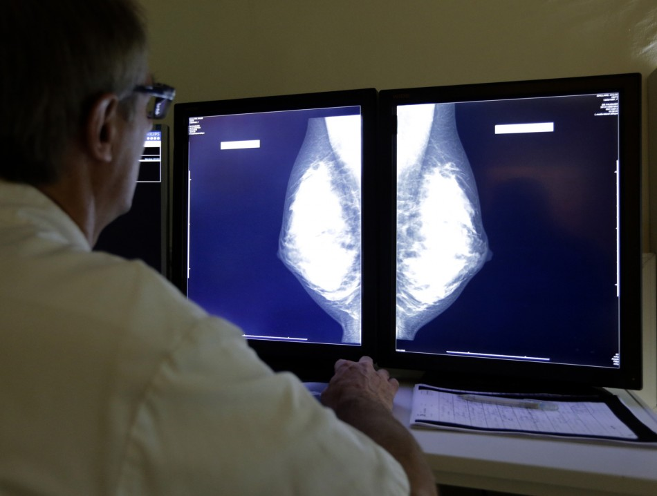 A doctor looking at X-Rays of a Breast.
