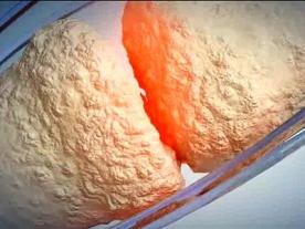 New Drug Gives Hope to Rheumatoid Arthritis Patients