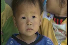 Malnutrition wreaks heavy toll on North Korea