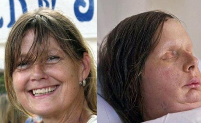 Chimp maul victim, Charla Nash, gets $4m payout