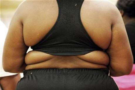 Female Fat Prejudice Exists Even After Weight Loss