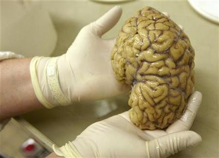 Lab assistant holds hemisphere of healthy brain at Belle Idee University Hospital in Chene-Bourg