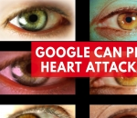 google-retinal-scans-can-predict-risk-of-heart-attack