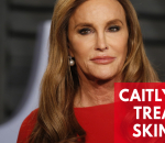 caitlyn-jenner-treated-for-skin-cancer